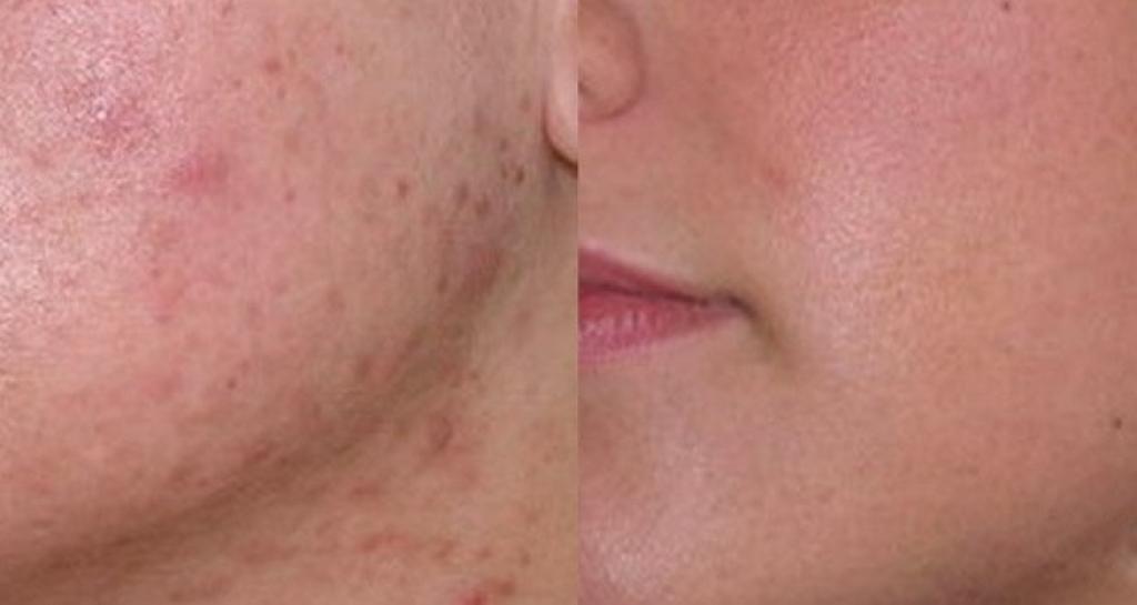 Fabuleux Une recette naturelle pour se débarrasser des cicatrices d'acné  EU68