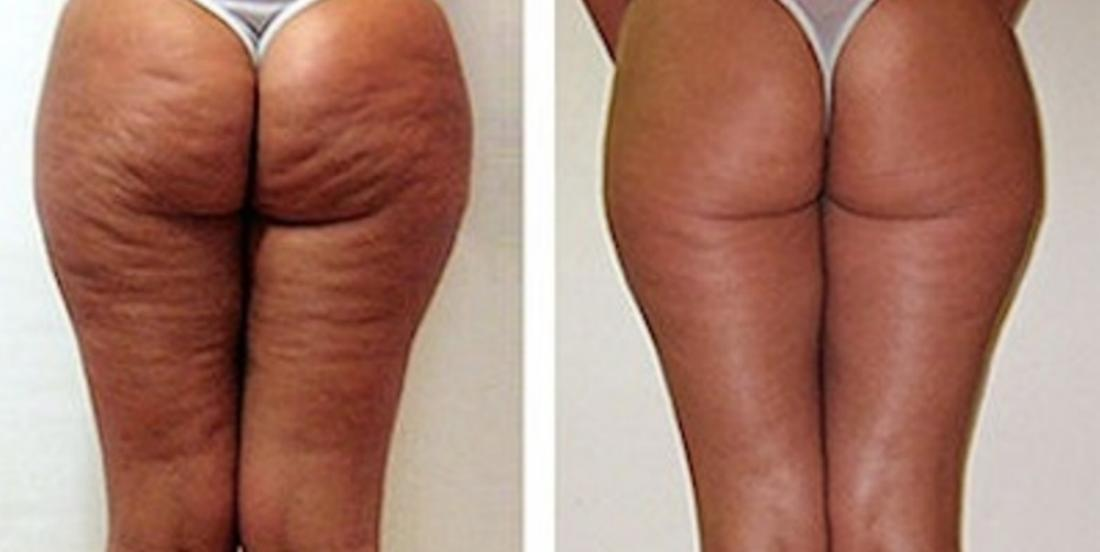 Ce qu'elle a utilisé pour faire disparaître sa cellulite se trouve probablement dans votre… poubelle!