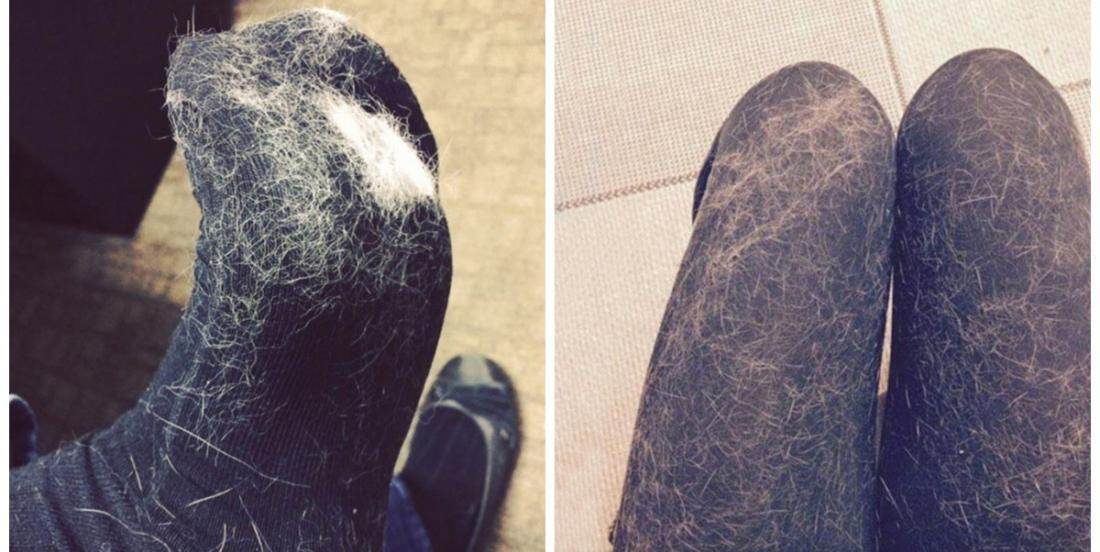 Les poils d'animaux collent sur vos vêtements même après le lavage? Essayez ces trucs astucieux!