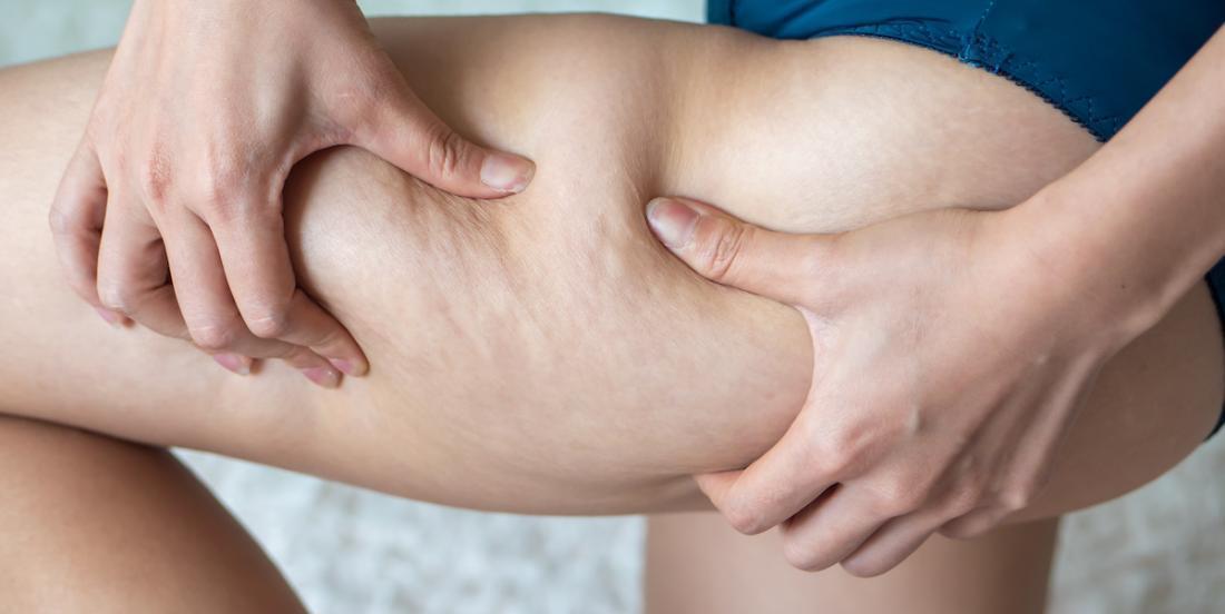 10 aliments qui aideraient à lutter contre la cellulite
