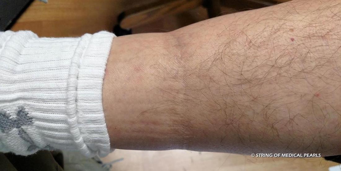 Les marques de chaussettes peuvent signaler un de ces 4 problèmes de santé