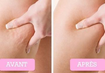 Pour faire fondre la cellulite et redonner du tonus à votre peau, cette recette n'a pas son pareil!