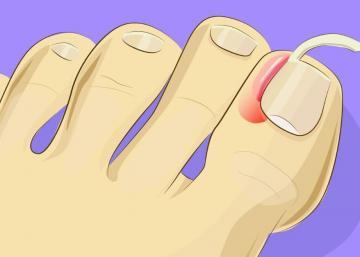 Il est facile de traiter soi-même un ongle incarné avant qu'il ne s'infecte! Il faut faire vite afin d'éviter l'opération!