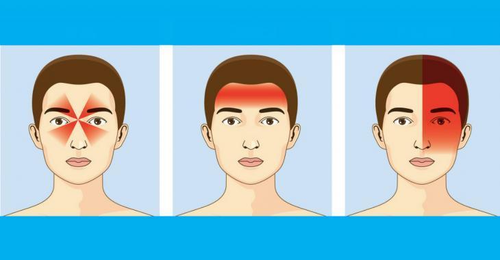 6 astuces tout en douceur pour soulager un mal de tête sans avoir recours aux médicaments!