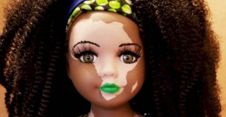 Une femme crée des poupées étonnantes pour aider les enfants atteints de vitiligo