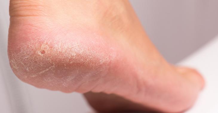 11 façons rapides de se débarrasser des callosités et d'avoir des pieds de bébé!